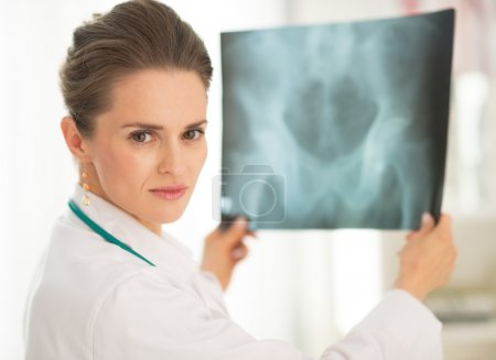 Doctor woman with fluorography