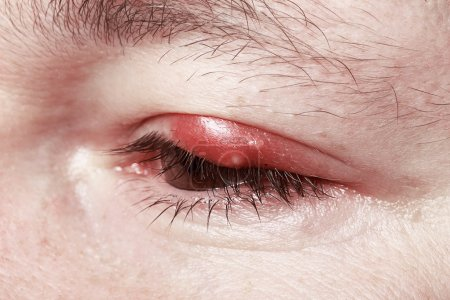 Photo for Sore Red Eye. Chalazion and Blepharitis. Inflammation - Royalty Free Image