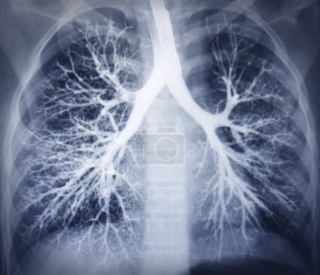 Bronchoscopy image. Chest X-ray. Healthy lungs