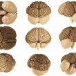 3 D model brain in different projections...