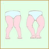 Genu varum genu valgum - a physical legs deformity