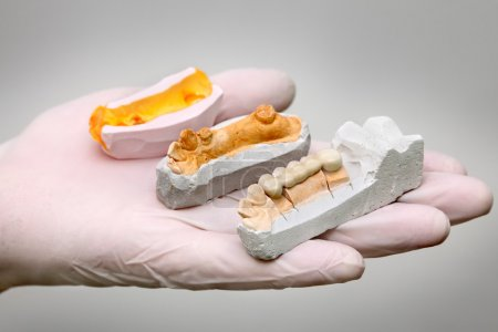 Dentist holding artificial tooth, plaster and wax ...