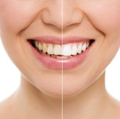 Zahnpflege-Frau