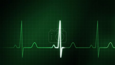The graphic of EKG monitor for medical theme...
