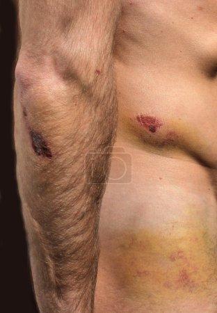 large hematoma on human hand and hip