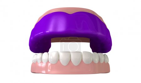 Gum Guard Fitted On Open False Teeth