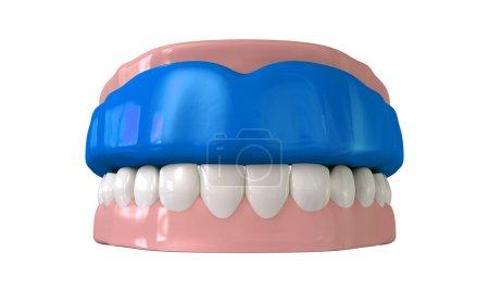 Gum Guard Fitted On Closed False Teeth