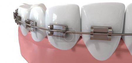 Human Teeth Extreme Closeup With Metal Braces