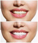 žena zubů před a po bělení. péče o ústní dutinu