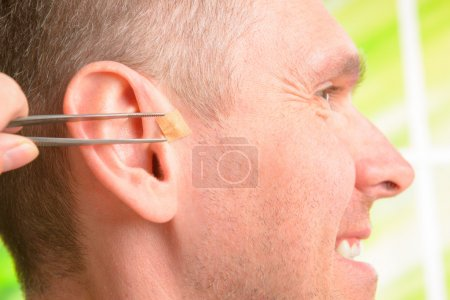 Auriculotherapy, or auricular therapy, or ear acup...