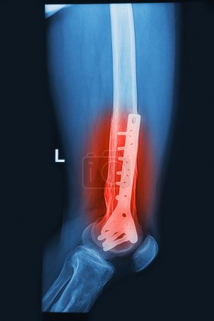 broken human thigh x-rays image with implant ( plate and screw )