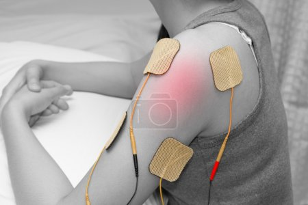 electrodes of tens device on shoulder, tens therapy, nerve stimu
