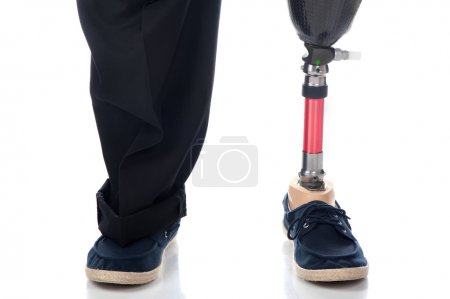 Photo for An adult man with a below knee amputation stands upright with his new prosthetic leg. - Royalty Free Image