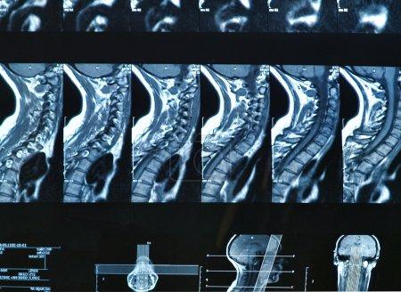 MRI C-spine