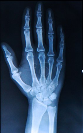 X-ray of human Hand and fingers