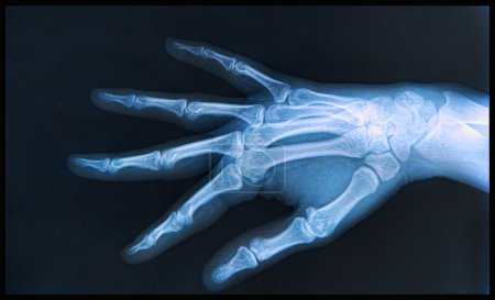 X-ray of human Hand