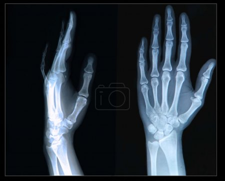 Xray of Hand and fingers