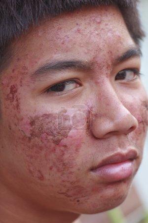 Photo pour As mâle avec photo acné problème peau en stock - image libre de droit