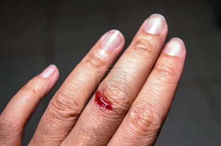 Flesh wound with blood on finger.