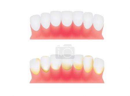Illustration pour Dents et gencives, plaque dentaire - image libre de droit