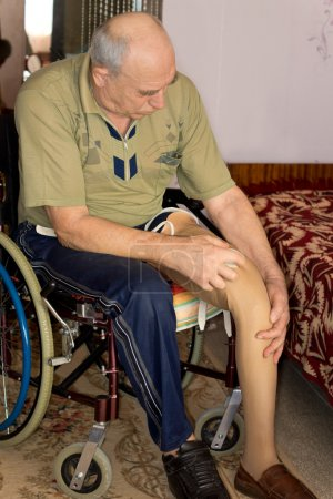 Photo for Elderly amputee with a prosthetic leg sitting in a wheelchair at home with his trouser leg rolled up while he fits it to his stump - Royalty Free Image