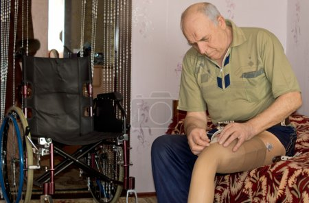 Senior man fitting his prosthetic leg