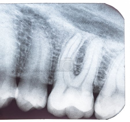 Tooth x-ray.