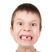 Ragazzo faccia closeup con un dente perduto