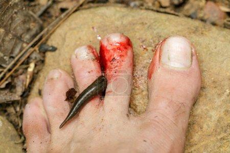 leech biting human foot