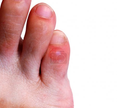 Blister on little toe