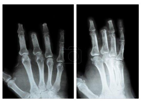 Photo pour Phalanx des Mittelfingers amputiert Hand, zwei profile - image libre de droit