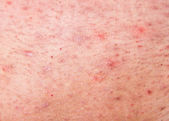 Human skin with acne