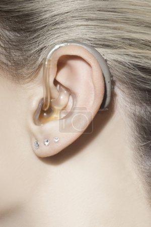 Beautiful woman ear with hearing aid