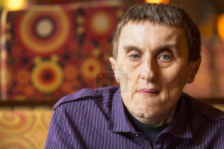Portrait of disabled man