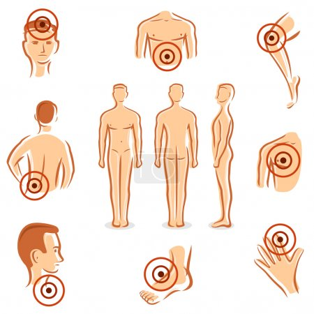 Illustration for People with pain dots collection. Vector - Royalty Free Image