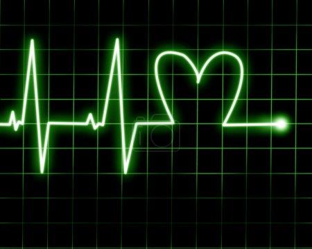 Photo pour Fréquence cardiaque enregistrée sur moniteur cardiaque - image libre de droit