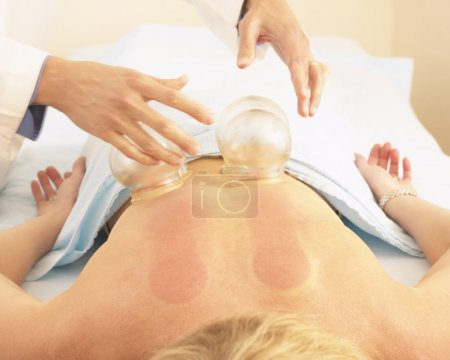 Woman receiving vacuum cupping treatment