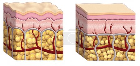 Photo for Illustrated cross sections of skin showing fat distribution in subcutaneous tissue with cellulite on the right diagram and normal fat cells on the right diagram - Royalty Free Image