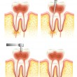 Illustration of a Dental root canal deterioration ...