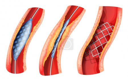 Illustration of a stent used to open blocked arter...