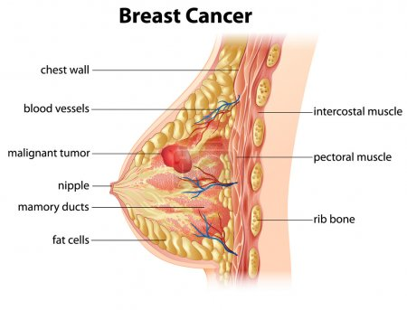 Diagram of breast cancer
