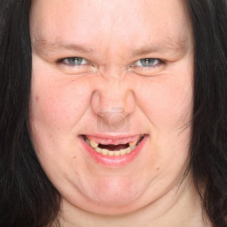Portrait an ugly woman with missing teeth.
