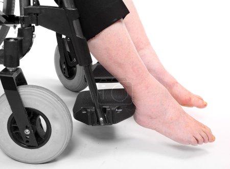 Legs disease of an elderly paraplegic woman sitting in a wheelchair.