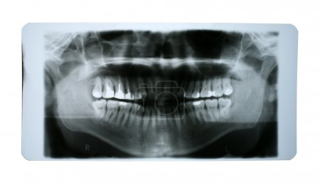 X-ray of Human Mouth with Fillings