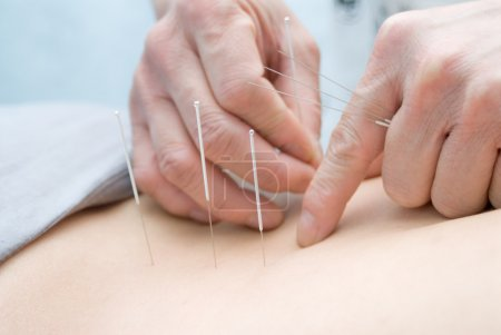 Photo for Acupuncture - Royalty Free Image