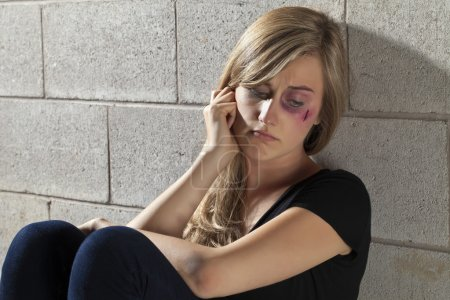 Photo for Close up image of abuse young woman - Royalty Free Image
