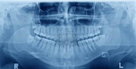 Panoramic x-ray image of teeth