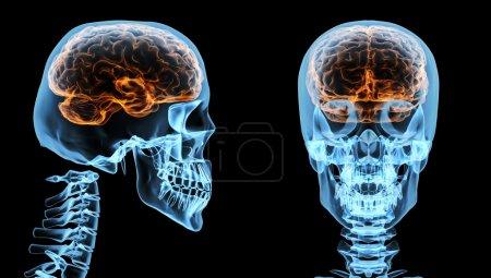 Brain inside skull