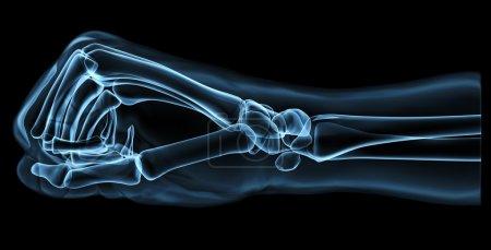 Metal, glass fist