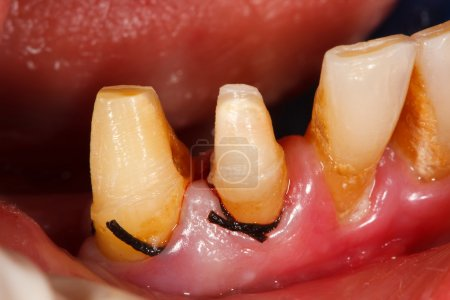 Photo pour Dents tamponnées en cours de traitement avec un fil dentaire rétractable placé dans le sillon gingival avant impression . - image libre de droit